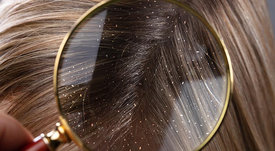 Saç Kepeklenmesi Problemi İçin Çözüm Önerileri